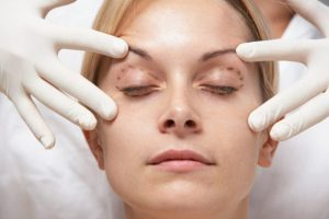 Blefaroplastia e Lifting Facial