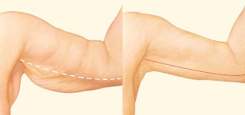 Cirurgia plástica pós bariatrica Dr pablo Huber